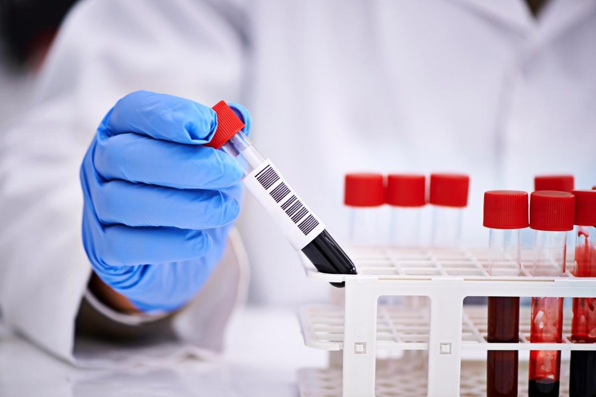 Лабораторная диагностика